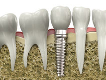 Dental implant Royalty Free Stock Image