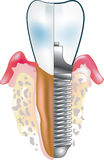 Dental implant. Color  illustration Royalty Free Stock Image