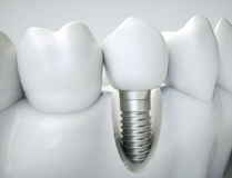 Free Dental Implant - 3d Rendering Royalty Free Stock Photos - 79852838