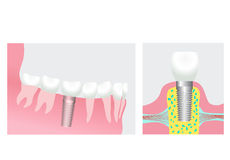 Dental implant. Vector illustration of dental implant Stock Photography
