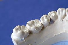 A dental implant artificial model Stock Photos