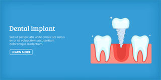 Dental implant banner horizontal, cartoon style Stock Photo