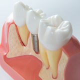 Dental implant. Close up of a Dental implant model. Selective focus Stock Image