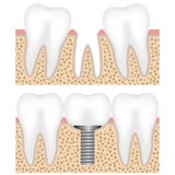 Dental implant with crown Stock Images
