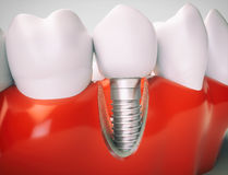 Dental implant - 3d rendering. Dental implant on the example of a jaw model Royalty Free Stock Photography