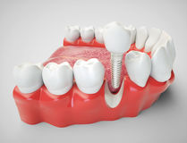 Dental implant - 3d rendering. Dental implant on the example of a jaw model Stock Photography