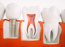 Dental implant - 3d rendering. Dental implant on the example of a jaw model Royalty Free Stock Photo