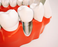 Dental implant - 3d rendering. Dental implant on the example of a jaw model Royalty Free Stock Photos