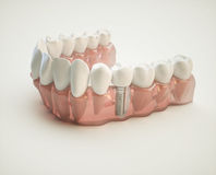 Dental implant - 3d rendering. Dental implant on the example of a jaw model Royalty Free Stock Images