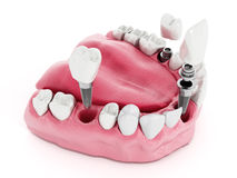 Dental implant detail royalty free illustration
