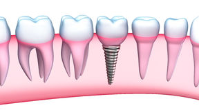 Dental Implant detailed view. 3D Illustration Royalty Free Stock Photos