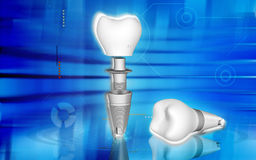 Dental implant Royalty Free Stock Photography