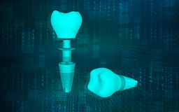 Dental implant Royalty Free Stock Photo