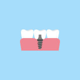 Dental implant flat icon Stock Photography