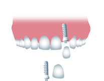 Dental implant. Illustration, color vector Stock Image