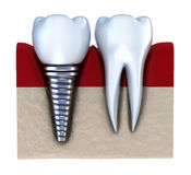Dental implant - implanted in jaw bone. Isolated on white Royalty Free Stock Photography