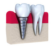 Dental implant - implanted in jaw bone. Isolated on white Royalty Free Stock Image