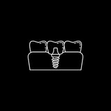 Dental implant line icon. Dental and medicine, vector graphics, a linear pattern on a black background, eps 10 Vector Illustration