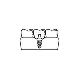 Dental implant line icon. Dental and medicine, vector graphics, a linear pattern on a white background, eps 10 Vector Illustration