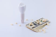 Dental implant. The maquette of the  near the pack of dollars and teeth on it Royalty Free Stock Image