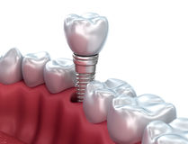 Dental implant, Medically accurate Royalty Free Stock Photography
