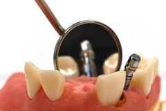 Dental implant and mirror Stock Photo
