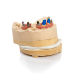 Dental Implant Model Stock Photo