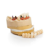 Dental Implant Model Royalty Free Stock Photography