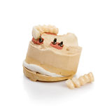 Dental Implant Model Royalty Free Stock Images