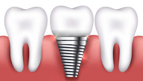 Dental implant and normal teeth Stock Image