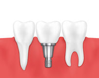 Dental implant and normal tooth vector illustration Stock Photography