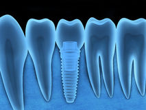 Dental implant x-ray Royalty Free Stock Photos