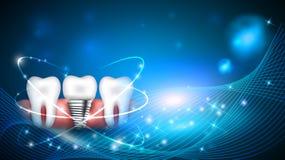 Dental implant scientific modern design Royalty Free Stock Photo
