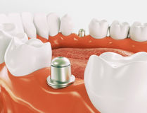 Dental implant - Series 1 of 3 - 3d rendering. Dental implant on the example of a jaw model royalty free stock images