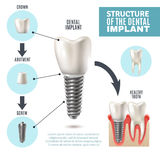 Dental Implant Structure Medical Infographic Poster. Dental implant structure medical pictorial educative infographic poster with molar replacement end healthy royalty free illustration