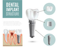 Dental implant structure medical pictorial educative infographic poster. With molar replacement end healthy tools models vector illustration Royalty Free Stock Images