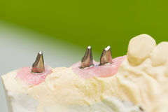 Dental Implant. Implant stubs on gypsum casting made by technician before trying them in mouth Royalty Free Stock Photography