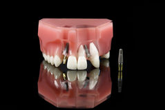 Dental Implant and Teeth model. Real Human Wisdom tooth, Dental Titanium Implant and Plastic teeth model over black Royalty Free Stock Photos
