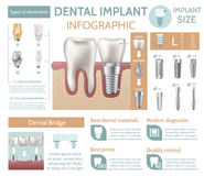 Dental implant tooth care medical center dentist clinic website infographic poster vector illustration. Dental implant structure medical pictorial educative Stock Photo