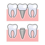 Dental Implant and Tooth Set. Vector Stock Photos