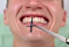 Dental implant in tweezers. On a smile patient background Stock Photos