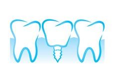 Dental implant. Vector illustration of dental implant Royalty Free Stock Images
