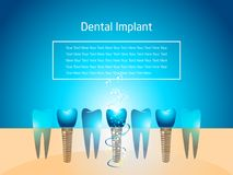 Dental Implant Wallpaper royalty free stock photos