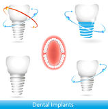 Dental implants. Bright colors. Isolated white background Stock Images