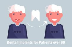 Dental implants for the elderly Vector. Cartoon. Isolated art Man. Dental implants for the elderly Vector. Cartoon. Isolated art vector illustration