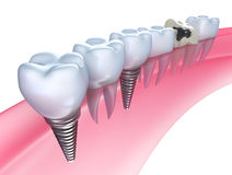 Dental implants in the gum Stock Photography