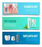 Dental Implants 3 Horizontal Banners Set Royalty Free Stock Photos