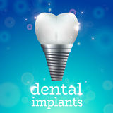 Dental implants 1 Royalty Free Stock Photo