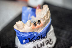 Dental implants Royalty Free Stock Photography