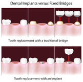 Dental implants versus fixed bridges. Advantages of Dental implants over traditional fixed bridges, eps10 royalty free illustration